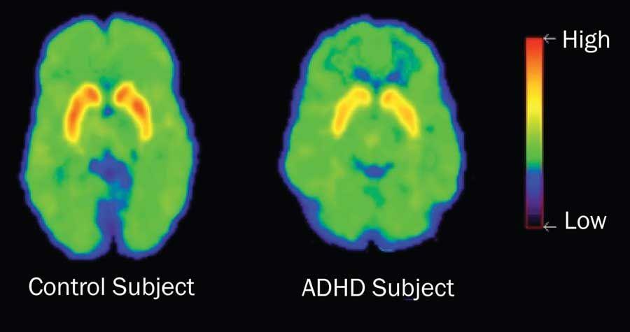 عوارض بیماری  بیش فعالی ADHD