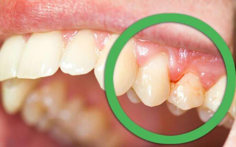 التهاب بافت اطراف دندان
