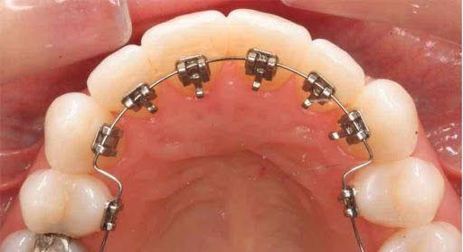 ارتودنسی لینگوال از پشت دندان
