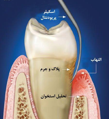 درمان التهاب بافت اطراف دندان
