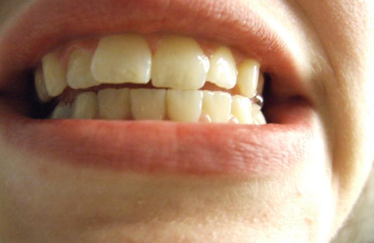 جرم و پوسیدگی دندان