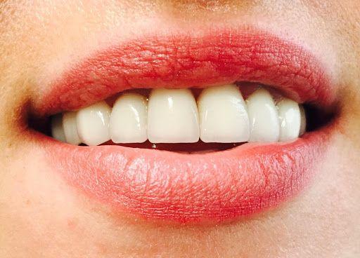 لبخند زیبا با پروتز
