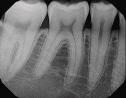 عکس رادیوگرافی دندان