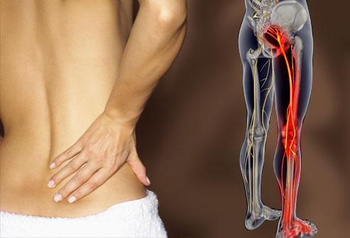 درمانهای محافظه کارانه متداول قبل از عمل
