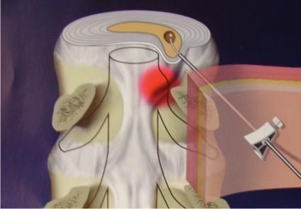 دیسککتومی بسته از راه پوست با کمک لیزر  (PLDD)