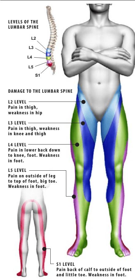 درد انتشاری از کمر به پاها (سیاتیک)