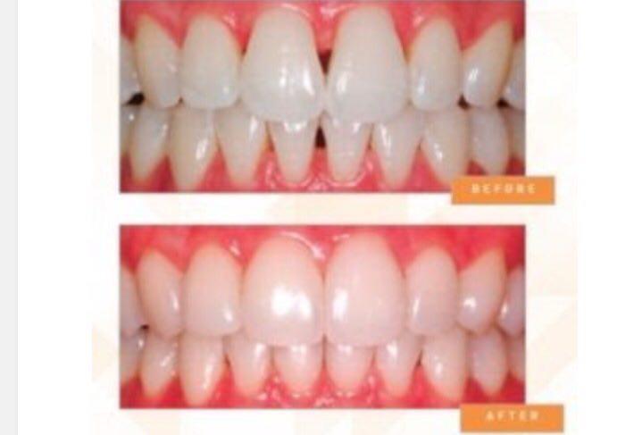 مثلث سياه  بين دنداني و درمان به روش كامپوزيت ونير