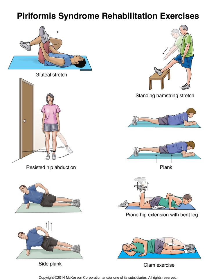 ورزش برای سندرم پریفورمیس