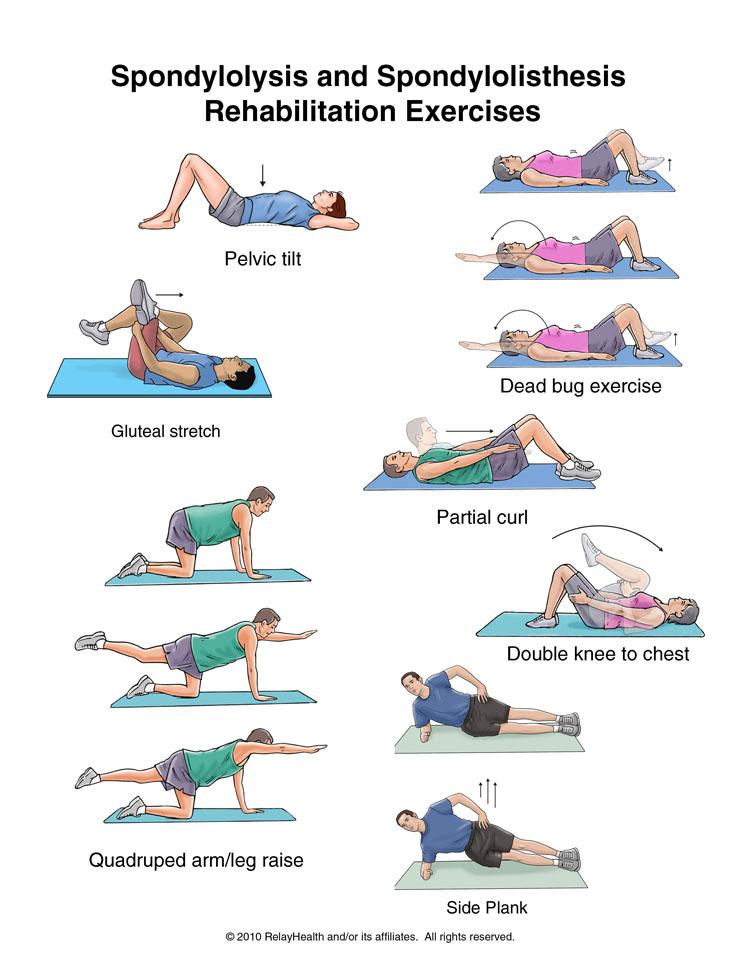 ورزش درمانی لیزخوردگی مهره کمر