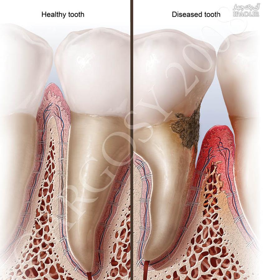 ToothCavites