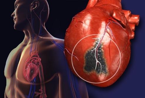 حمله قلبی با حمله پانیک چه فرقی دارد