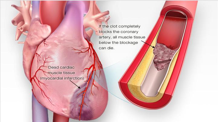 تفاوت بیماریهای قلبی در زنان و مردان و نارسایی قلبی