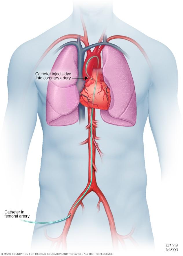 معاینات و تست های قلب و آنژیوگرافی کرونری