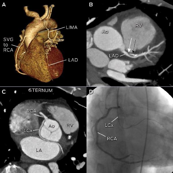 معاینات و تست های قلب و سی تی آنژیوگرافی کرونری