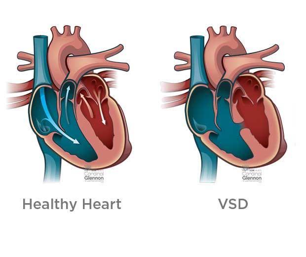 مقایسه قلب سالم با سوارخ قلب در کودکان