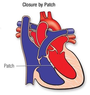 بستن سوراخ قلب در کودکان با پد