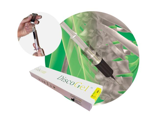 پاسخ به سوالاتی درباره تزریق دیسکوژل در دیسک کمر