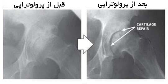 قبل و بعد از پرولوتراپی