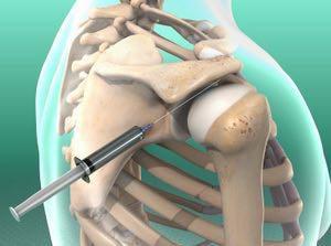درمان شانه منجمد بدون عمل جراحی