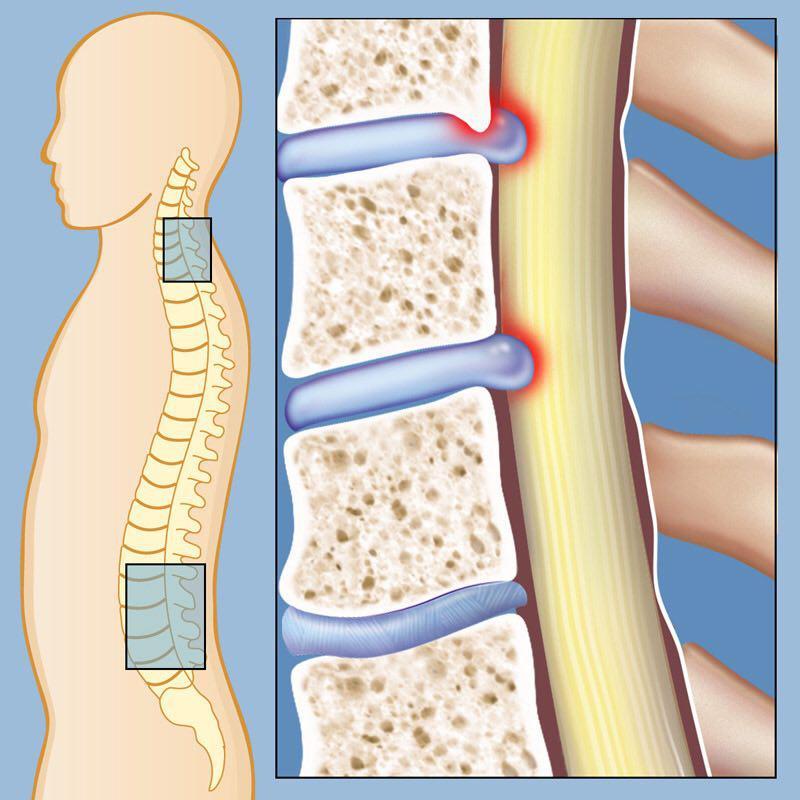 تنگی کانال نخاعی کمر