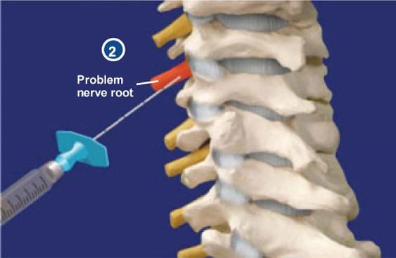 بلوک انتخابی ریشه عصبی (SNRB)(selective nerve root block)