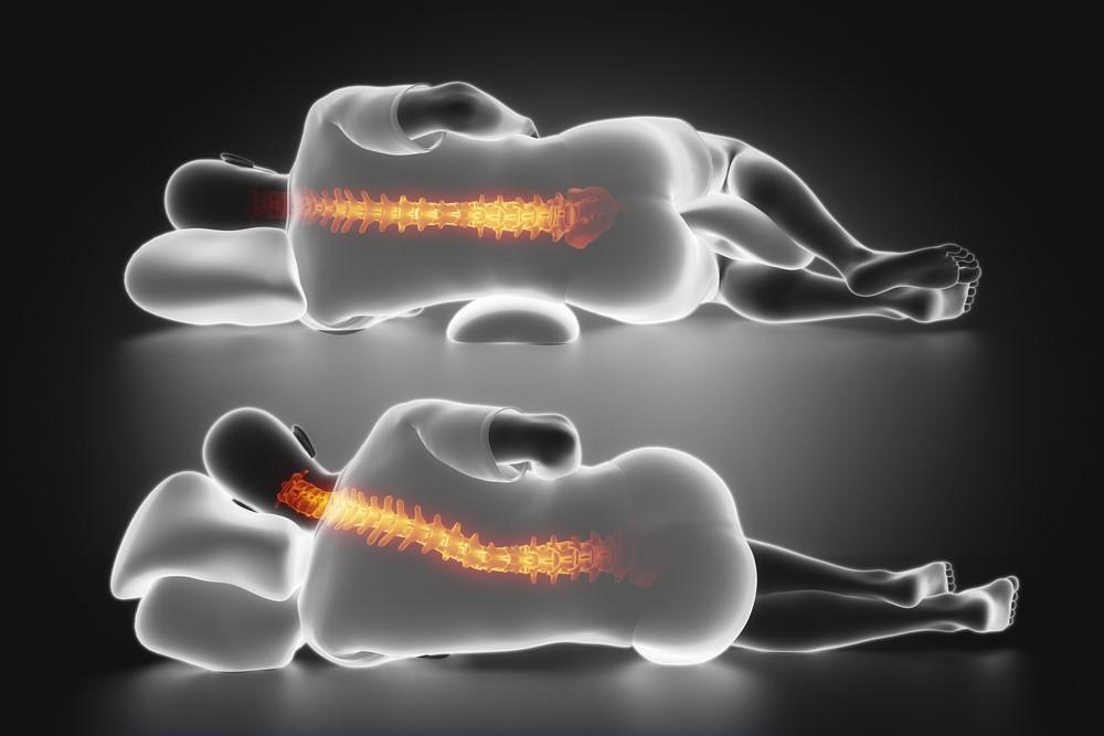 نحوه خوابیدن هم تاثیر زیادی بر روی کمر درد دارد