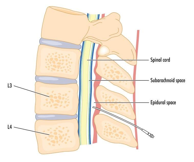 درمان بیرون زدگی دیسک با تزریق اپیدورال استروئید