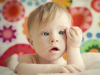 تولد نوزادان مبتلا به سندرم داون