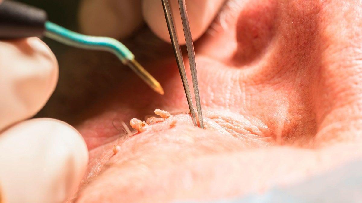درمان زگیل مقعدی